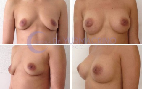 Breast Augmentation – Case 25