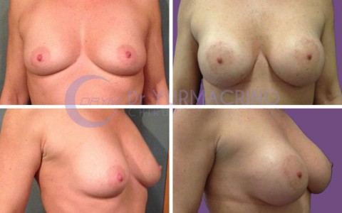 Breast Augmentation – Case 26