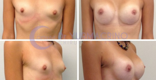 Breast Shape Correction – Case 1
