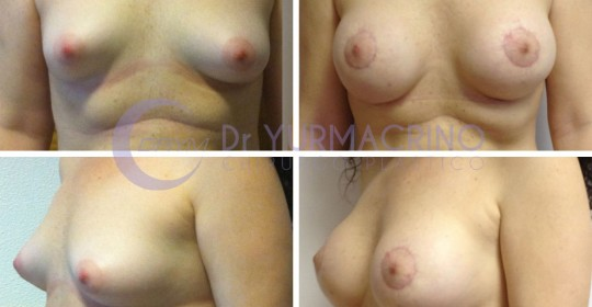 Breast Shape Correction – Case 2