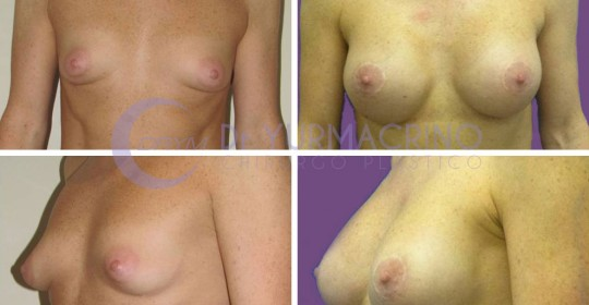 Breast Shape Correction – Case 3