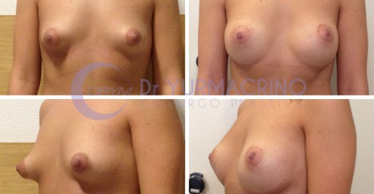 Breast Shape Correction – Case 4