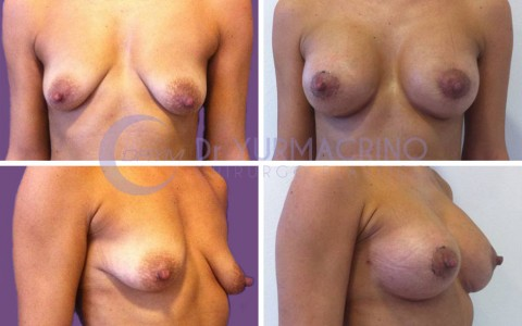 Breast Shape Correction – Case 5