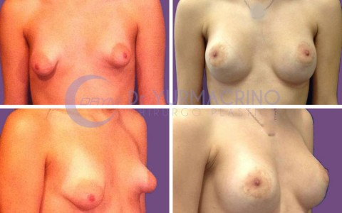 Breast Shape Correction – Case 6