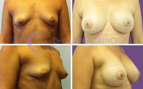 Breast Shape Correction – Case 7