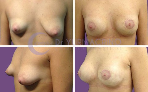 Breast Shape Correction – Case 8