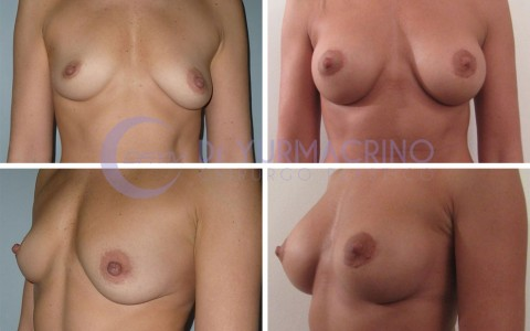 Breast Shape Correction – Case 9