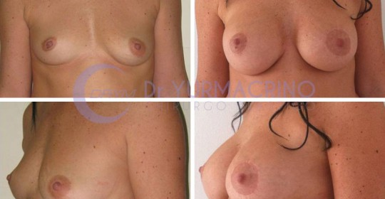 Breast Shape Correction – Case 10