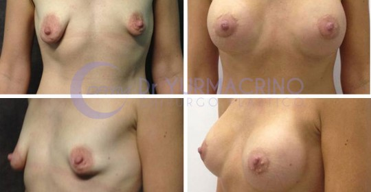 Breast Shape Correction – Case 11