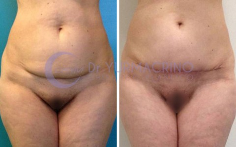 Mini-abdominoplasty – Case 1/A