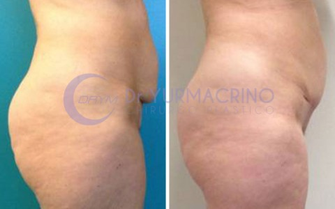 Mini-abdominoplasty – Case 1/B