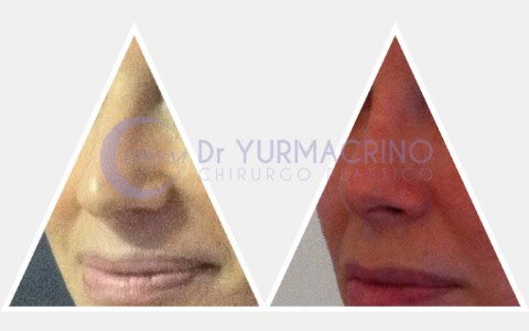 Rhinoplasty – Case 1/B