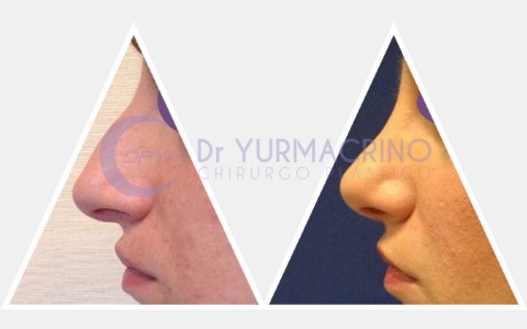 Rhinoplasty – Case 2/A