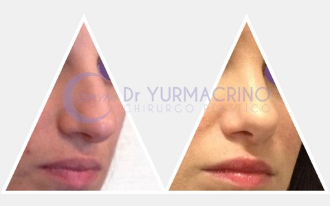 Rhinoplasty – Case 2/B