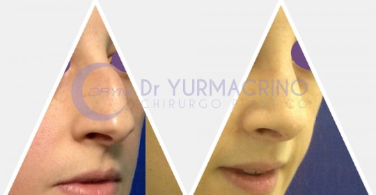 Rhinoplasty – Case 3/B