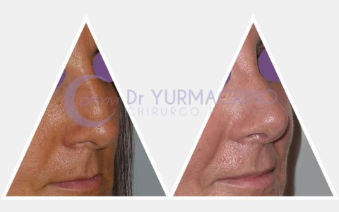 Rhinoplasty – Case 4/A