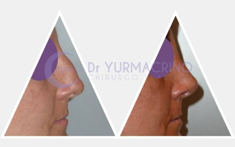 Rhinoplasty – Case 4/B