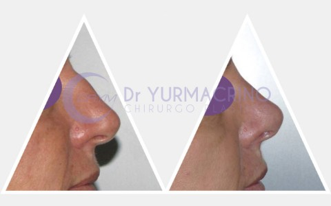 Rhinoplasty – Case 5/A