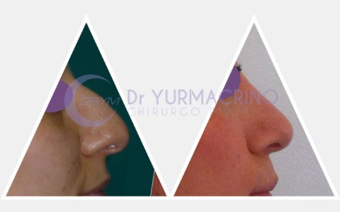 Rhinoplasty – Case 6/A