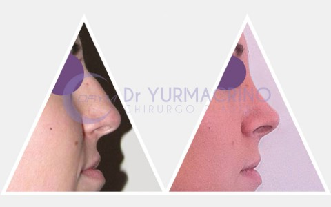 Rhinoplasty – Case 7/A
