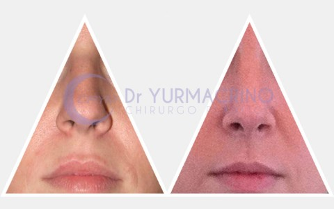 Rhinoplasty – Case 7/B