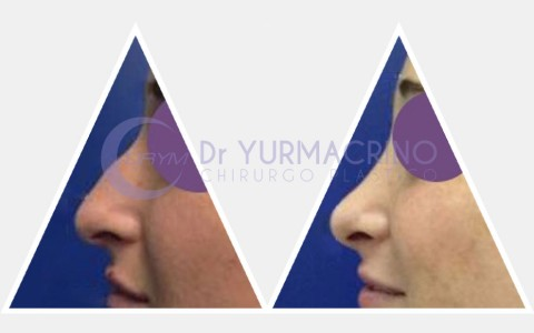 Rhinoplasty – Case 9/B