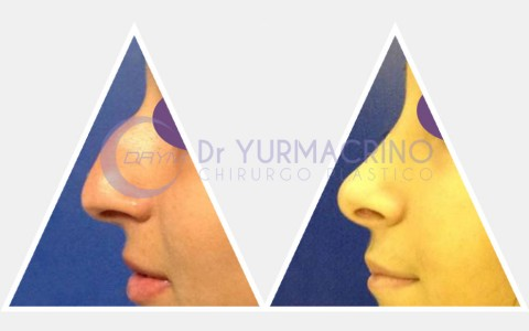 Rhinoplasty – Case 11/A