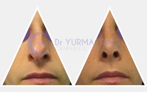 Rhinoplasty – Case 14/B