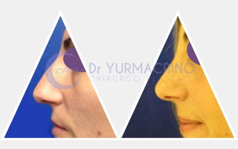 Rhinoplasty – Case 15/A