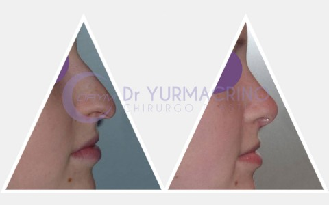 Rhinoplasty – Case 16/A