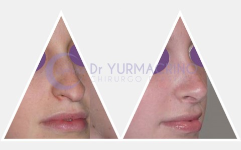 Rhinoplasty – Case 16/B