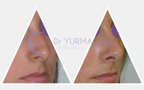 Rhinoplasty – Case 17/B