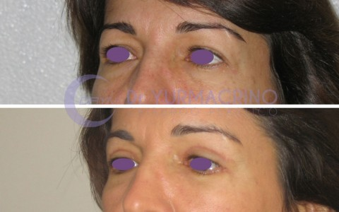 Blepharoplasty – Case 3/B