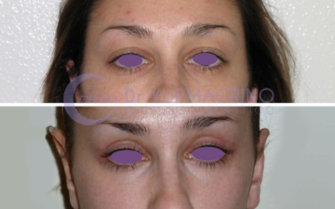 Blepharoplasty – Case 4/A