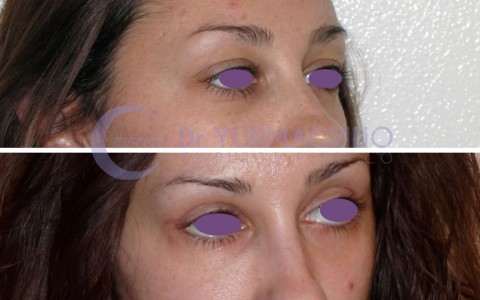 Blepharoplasty – Case 4/B