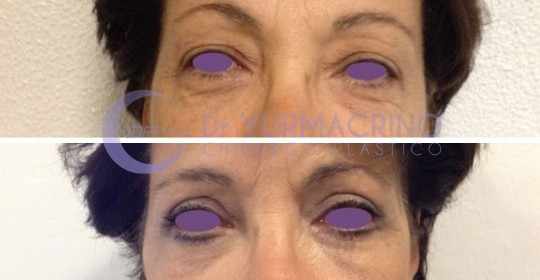 Blepharoplasty – Case 5/A