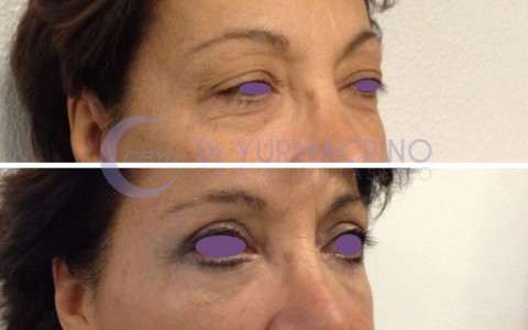 Blepharoplasty – Case 5/B