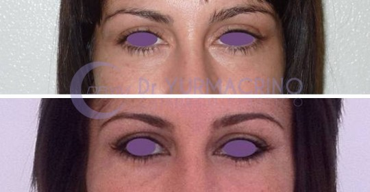 Blepharoplasty – Case 6/A