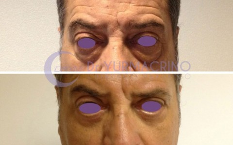 Blepharoplasty – Case 7/A