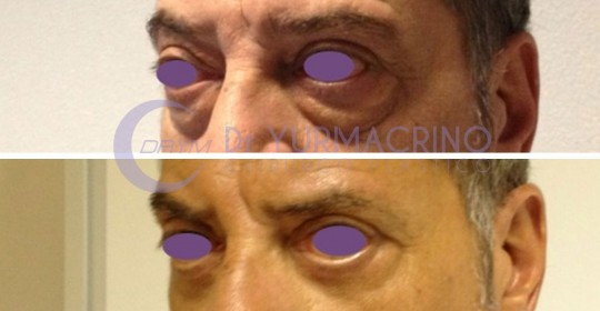 Blepharoplasty – Case 7/B