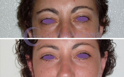 Blepharoplasty – Case 8/A