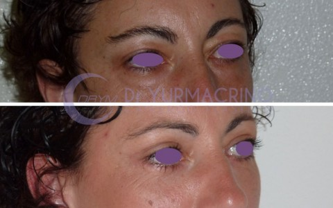 Blepharoplasty – Case 8/B