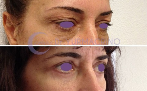 Blepharoplasty – Case 9/B