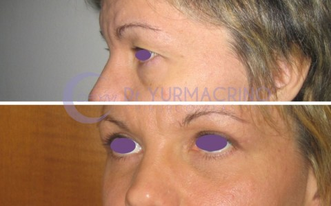 Blepharoplasty – Case 10/B