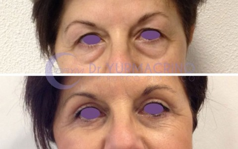 Blepharoplasty – Case 11/A