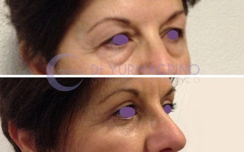 Blepharoplasty – Case 11/B