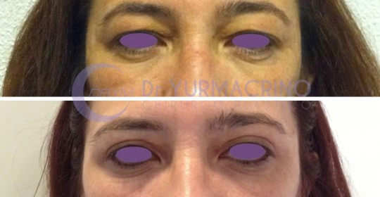 Blepharoplasty – Case 12/A