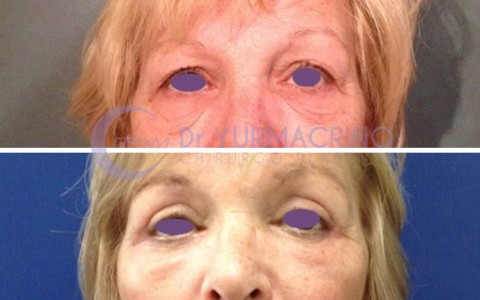 Blepharoplasty – Case 13/A