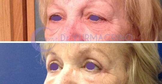 Blepharoplasty – Case 13/B