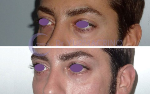 Blepharoplasty – Case 14/B